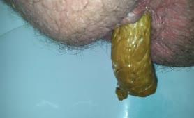 Hairy guy pooping