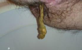 Hairy guy shitting in toilet