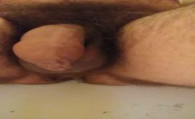 Hairy latino boy has diarheea